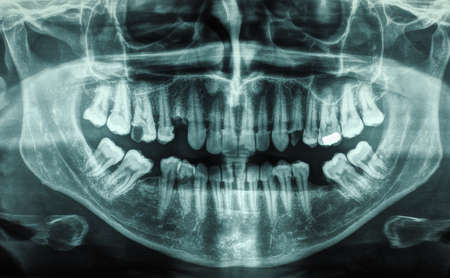 X ray of human mouth with teeth bones