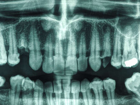 nhs: X ray of human mouth with teeth bones