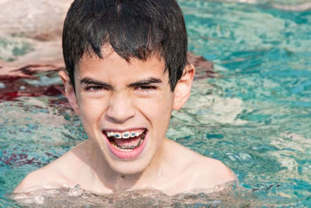 boy with braces playing in swimming pool. He is ten years old.