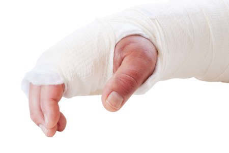 broken arm in a splint and cast. Fingers are discolored and swollen. Shot in natural light. Stock Photo - 19351488