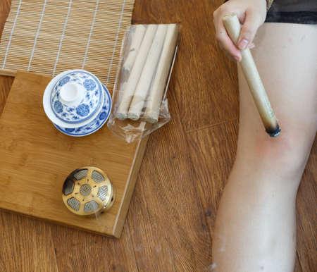 moxa: Chinese medicine moxibustion scene