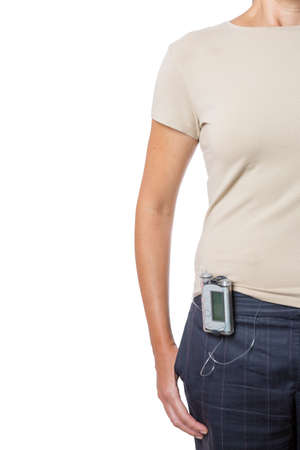 young woman wearing an insulin pump attached to the waist of her trousers isolated on a white background - focus on the insulin pump Stock Photo