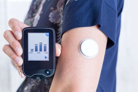 closeup of a hand of a young woman showing a reader after scanning the sensor of the glucose monitoring system beside the sensor placed on her arm - focus on the reader Foto de archivo