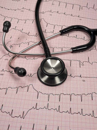 charting: Cardiac Charting with Stethoscope Stock Photo