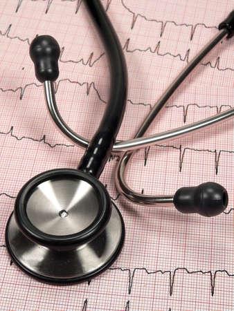 Cardiac Charting with Stethoscope Stock Photo
