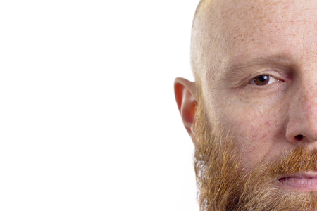 half face: Bald man with red beard half face isolated on white  Stock Photo