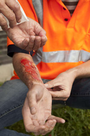 work injury: Safety and accident at work. Stock Photo