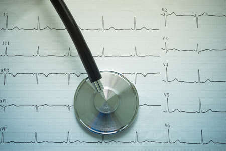 cardiograph: Stethoscope and cardiograph report.