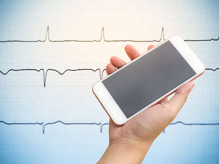 Smartphone on hand with electrocardiogram background.
