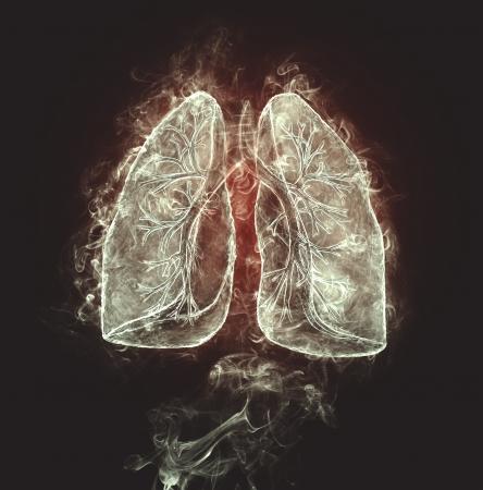 bronchi: Human lungs and bronchi made of smoke  Stock Photo