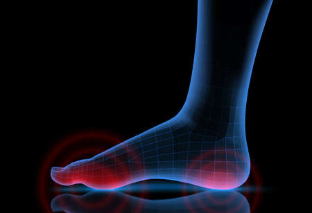 vector human foot. blue contour and red spots of pain. ready element for medicine and orthopedics Vector Illustration