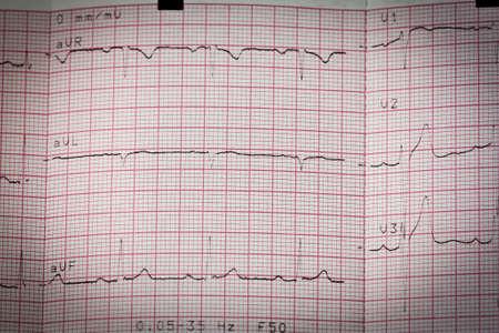 Electrocardiogram ecg heart beat test in paper Stock Photo - 11141875