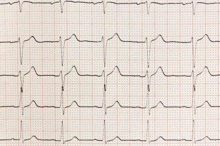 electrocardiograma: Coraz�n Electrocardiograma ECG ritmo de prueba en papel Foto de archivo