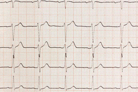 elettrocardiogramma: Cuore prova Elettrocardiogramma ECG battito in carta