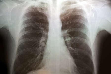 pulmon sano: Imagen de rayos X del t�rax humano con enfisema peque�a Foto de archivo