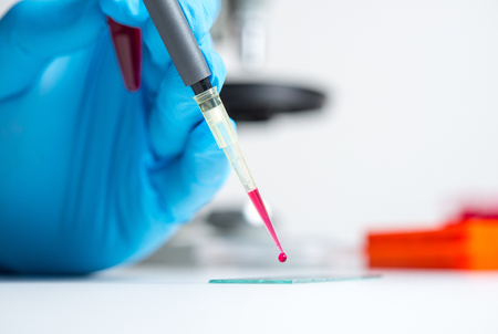 A drop of blood for the study and examination of medical laboratory Stock Photo