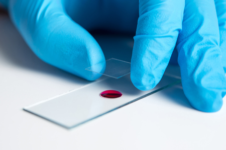 A drop of blood for the study and conduct of medical laboratory Stock Photo