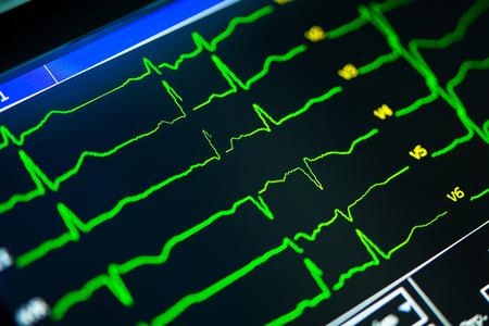 primer plano de cardiograma en un monitor de cardiógrafo