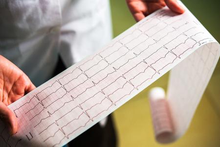 cardiograma close-up en manos de los doctores