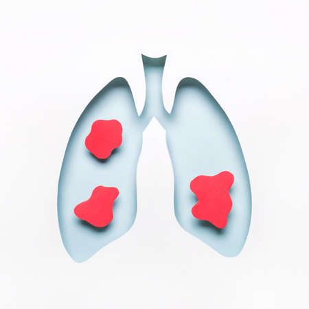 Blue Hole lungs with red rounded spots of disease.