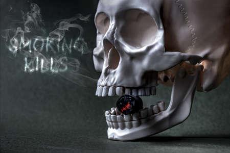 cigare: Smoking kills 1