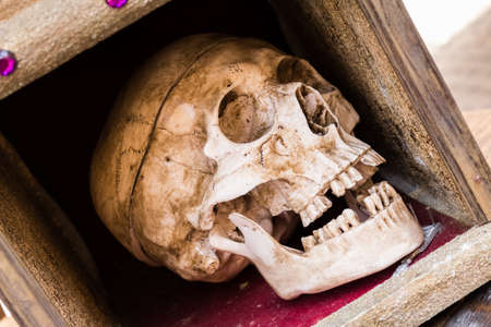 human skull enclosed in a wooden case.