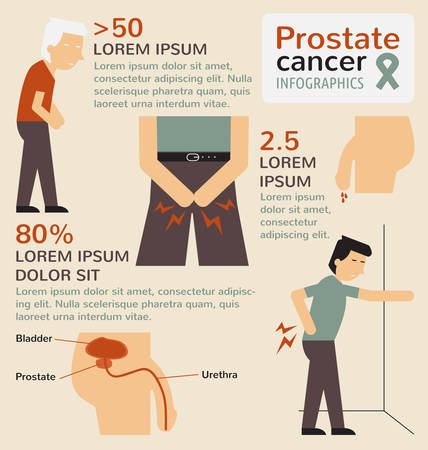 Prostate cancer infographics Illustration