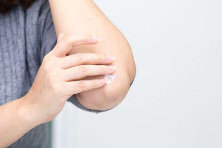 팔꿈치에 크림을 바르는 젊은 여성의 근접 촬영 스톡 콘텐츠