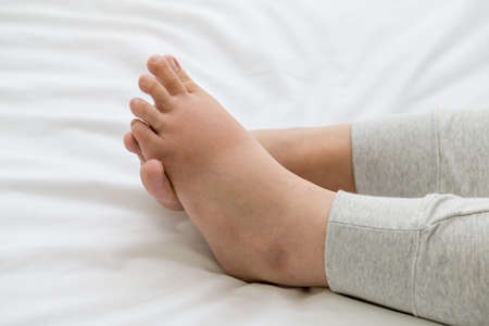 Pregnant women with swelling feet, pain foot and lying on bed in the room. Swollen feet and fetal poisoning or toxicity concept 免版税图像 - 131280074