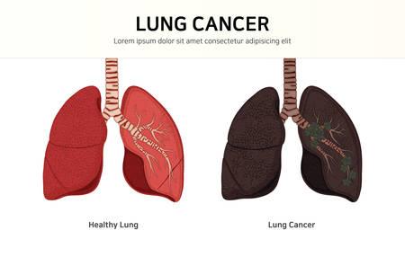 gesunde Lunge und Lungenkrebs. Normale Lunge vs. Lungenkrebs Vektorgrafik