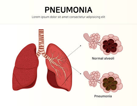Pneumonia. normal and infected alveoli