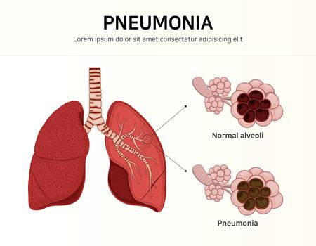 Pneumonia. normal and infected alveoli