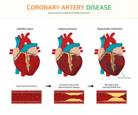 coronary artery disease. (angina pectoris and myocardial infarction) Illustration