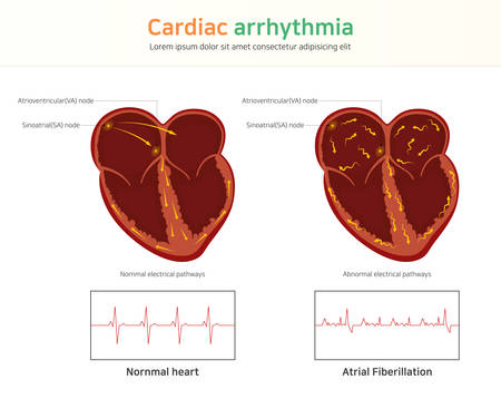 Cardiac arrhythmia. wolff-parkinson-white syndrome. atrial fibrillation