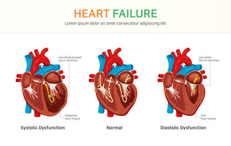 Heart failure or congestive heart failure Illustration