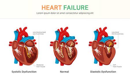 Niewydolność serca lub zastoinowa niewydolność serca Ilustracje wektorowe