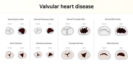 Cardiopathie valvulaire. sténose valvulaire