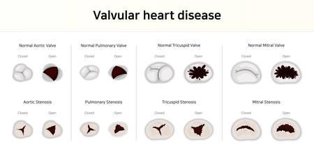 Valvular heart disease. valvular stenosis  イラスト・ベクター素材