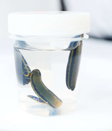Hirudotherapy. medical leeches in a glass in water Stock Photo