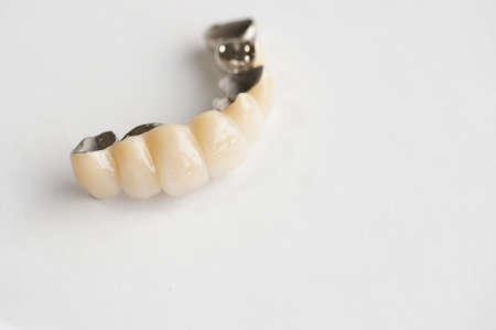 prosthesis: bridge, the fixed type denture                   Stock Photo