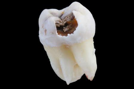 黒の背景に虫歯