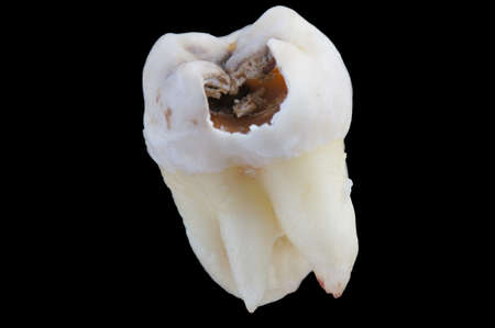 cementum: Decayed tooth on black background