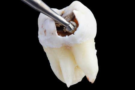 形ラウンドバーで虫歯治療