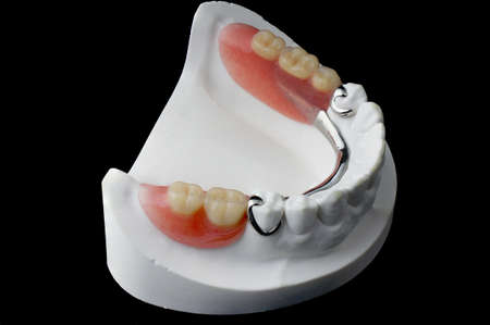 partial: Partial Denture on black background Stock Photo
