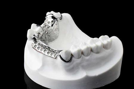 surrogate: Partial Denture on black background Stock Photo