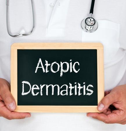 dermatitis: Atopic Dermatitis Stock Photo