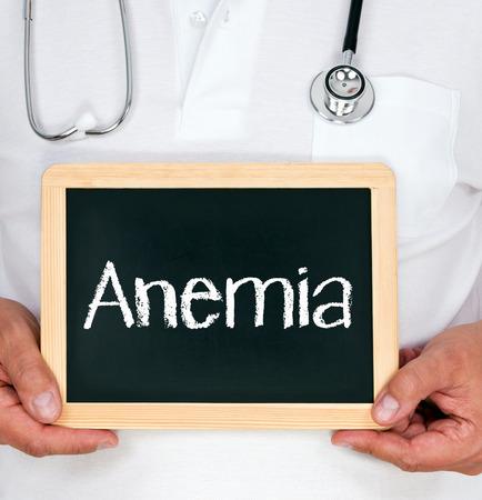 anemia: Anemia Stock Photo