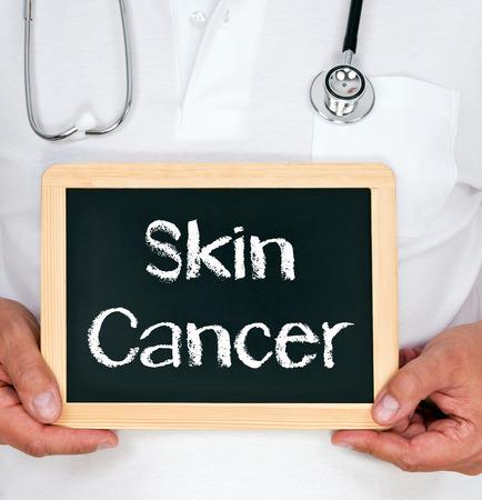 sarcoma: Skin Cancer Stock Photo