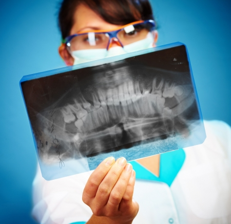 female doctor with jaw xray (focus on xray) Stock Photo