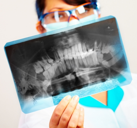 medical decisions: female doctor with jaw xray (focus on xray) Stock Photo